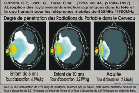 imagerie irradiation cerveau portable